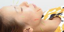 メディカル鍼灸治療